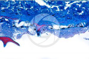 Scyliorhinus. Scyllium. Dogfish. Skin and epidermis. Vertical section. 64X