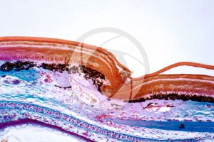 Lacerta. Lizard. Shield-shaped scute. Vertical section. 250X