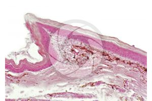 Testudines. Turtle. Leg. Skin and epidermis. Vertical section. 125X