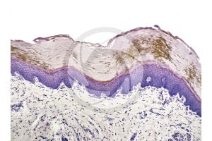 Man. Skin and epidermis. Vertical section. 125X