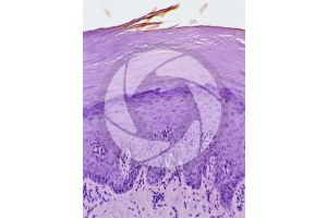 Man. Skin and epidermis. Vertical section. 250X