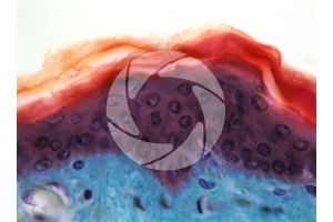 Man. Skin and epidermis. Vertical section. 400X