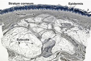Man. Skin and epidermis. Vertical section. 10X