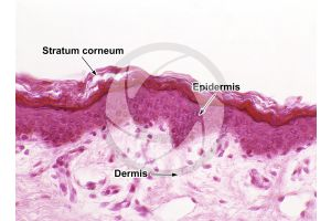Man. Skin and epidermis. Vertical section. 200X