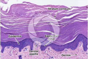 Man. Skin and epidermis. Vertical section. 50X