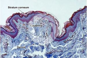 Man. Skin and epidermis. Vertical section. 100X