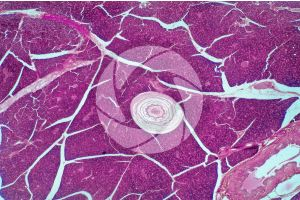 Man. Corpuscle of Pacini. Transverse section. 32X