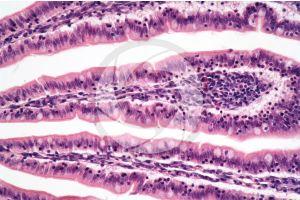 Rat. Small intestine. Transverse section. 250X
