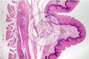 Man. Esophagus. Transverse section. 32X