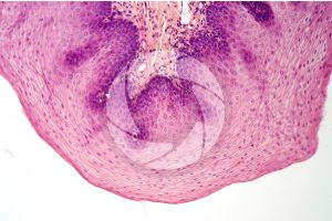 Man. Esophagus. Transverse section. 125X