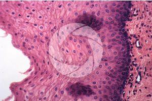 Man. Esophagus. Transverse section. 250X