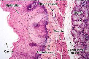 Man. Esophagus. Transverse section. 125X