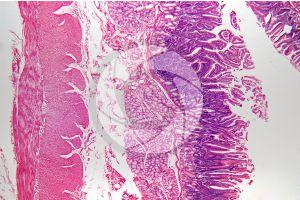 Man. Small intestine. Transverse section. 32X