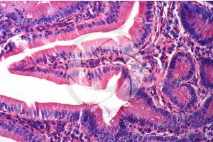 Man. Small intestine. Transverse section. 250X
