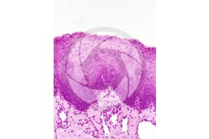 Mammal. Esophagus. Transverse section. 100X