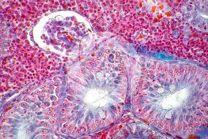 Cyprinus. Kidney. Transverse section. 500X