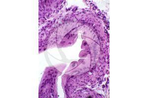 Rat. Ureter. Transverse section. 250X