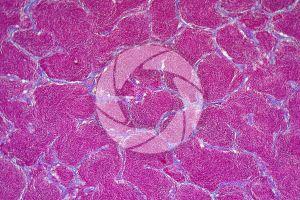 Cyprinus. Testicle. Transverse section. 125X