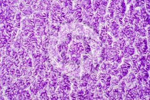 Rana. Frog. Mature ovary. Transverse section. 500X