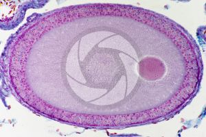 Lacerta. Lizard. Ovary. Transverse section. 250X