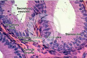 Rabbit. Testicle. Epididymis. Transverse section. 500X