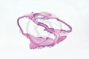 Man. Testicle. Seminal vesicle. Transverse section. 10X