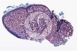 Young man. Prostate. Transverse section. 10X