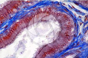 Young man. Prostate. Transverse section. 500X