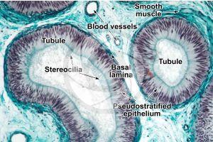 Man. Testicle. Epididymis. Transverse section. 125X