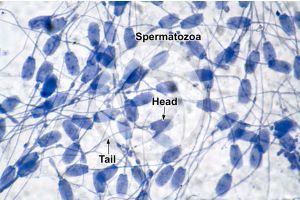 Man. Spermatozoon. 1000X