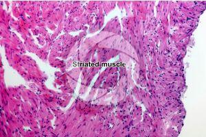 Rana. Frog. Cardiac muscle. Transverse section. 125X