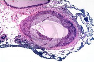 Mammal. Artery. Transverse section. 64X