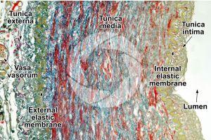 Mammal. Artery. Transverse section. 125X