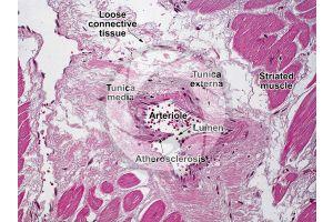 Mammal. Arteriole. Transverse section. 250X