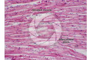 Mammal. Cardiac muscle. Longitudinal section. 125X
