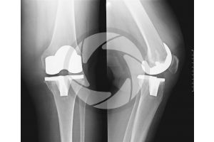 Man. Knee. Prosthesis. X_ray. Front and lateral view