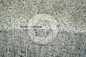 Mammal. Tooth. Longitudinal section. 250X