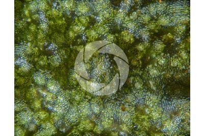 Marchantia polymorpha. Common liverwort. Antheridiophore. 30X