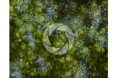 Marchantia polymorpha. Common liverwort. Antheridiophore. 60X