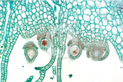 Marchantia polymorpha. Common liverwort. Zygote. Longitudinal section. 250X