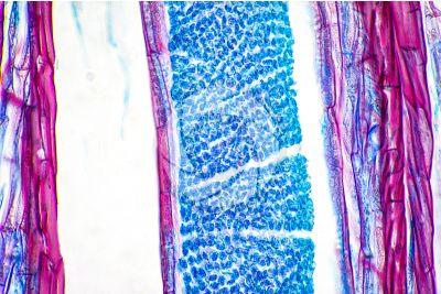 Polytrichum sp. Anteridio. Sezione longitudinale. 500X