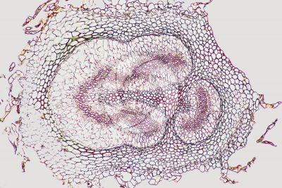 Adiantum sp. Walking fern. Rhizome. Amphiphloic siphonostele. Transverse section. 64X
