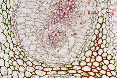 Adiantum sp. Walking fern. Rhizome. Amphiphloic siphonostele. Transverse section. 250X