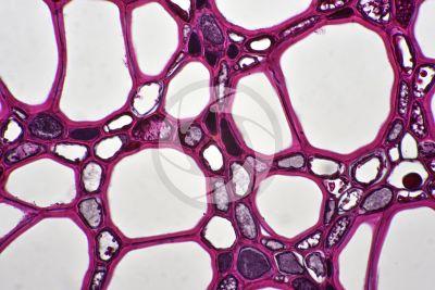 Dicranopteris sp. Forkedfern. Rhizome. Protostele. Transverse section. 500X