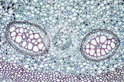 Pteridium sp. Rhizome. Dictyostele. Transverse section. 64X