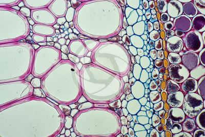 Pteridium sp. Rhizome. Meristele. Transverse section. 250X
