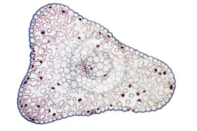 Psilotum nudum. Whisk fern. Stem. Protostele. Transverse section. 125X