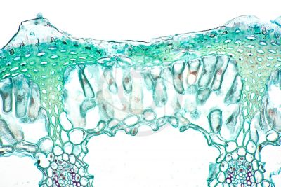 Equisetum fluviatile. Water horsetail. Rhizome. Transverse section. 250X