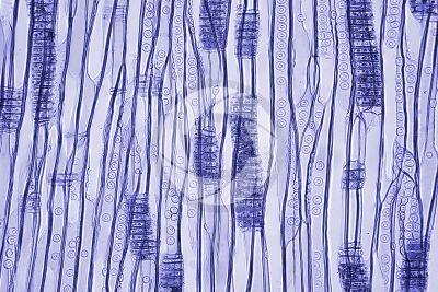 Larix decidua. European larch. Stem. Radial longitudinal section. Contrasting colour. 125X