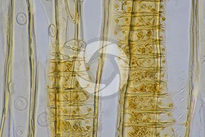 Larix decidua. European larch. Stem. Radial longitudinal section. 500X